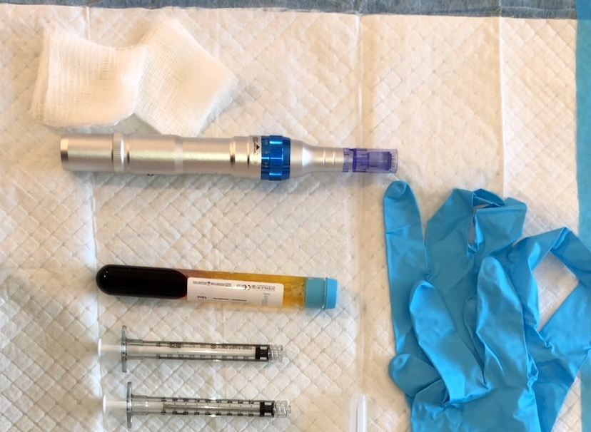 Microneeding with PRP Techniques: Part 2